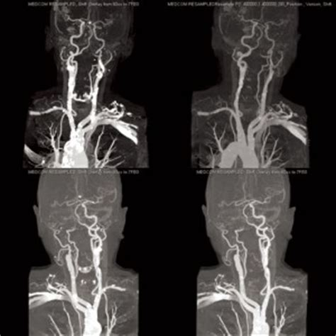 Surgical and Non-surgical Management of Carotid