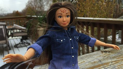 Meet Normal Barbie, the Doll With Cellulite and Acne That