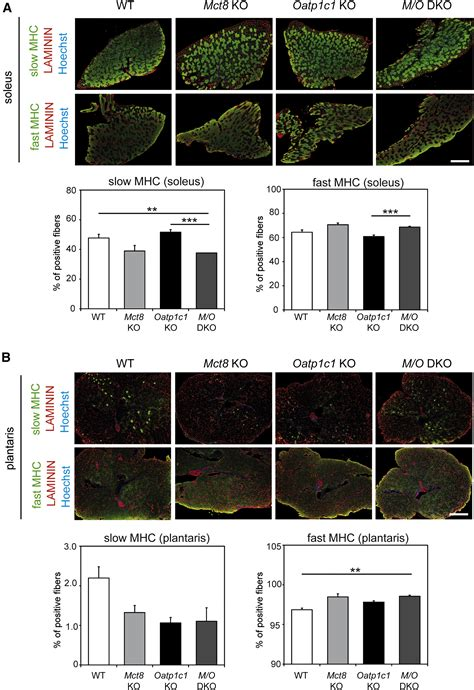 Thyroid Hormone Transporters MCT8 and OATP1C1 Control